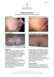 Vitiligo med foto og logo nr. 2.1 - Privathospitalet Mølholm