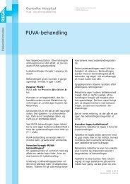 PUVA-behandling - EPIS - Gentofte Hospital