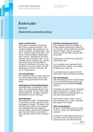 Åreknuder - EPIS - Gentofte Hospital