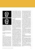 med boltpistol - Elbo - Page 4