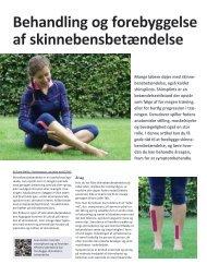 Behandling og forebyggelse af skinnebensbetændelse - Løberen