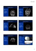 Ansager Case 1 Ansager Case 1 Ansager Case 1 Ansager Case 1 ... - Page 5
