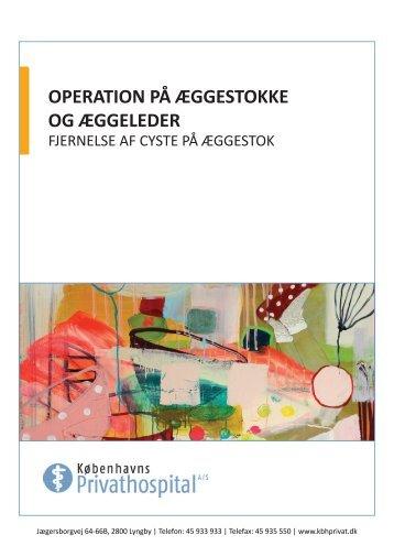 operation på æggestokke og æggeleder - Københavns Privathospital