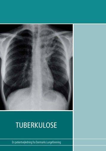 Tuberkulosepjece - Hvidovre Hospital