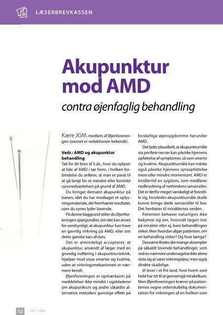 akupunktur mod amd