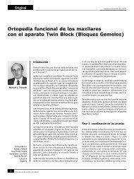 Ortopedia funcional de los maxilares con el aparato Twin Block ...