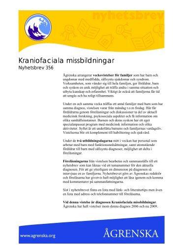 Kraniofaciala missbildningar - Ågrenska