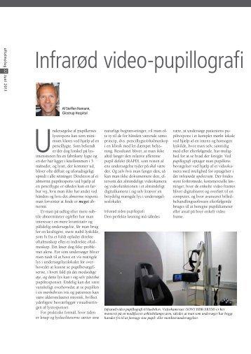 Infrarød video-pupillografi til husbehov Af Steffen Hamann - Oftalmolog