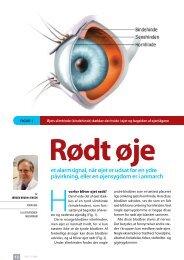 Rødt øje et alarmsignal, når øjet er udsat for en ydre påvirkning, eller ...