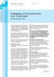 Biventrikulær ICD - EPIS - Gentofte Hospital
