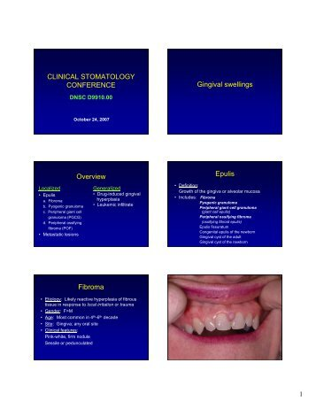 CLINICAL STOMATOLOGY CONFERENCE Gingival swellings ...