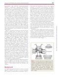 Diagnosis of arrhythmogenic right ventricular cardiomyopathy ... - Page 2