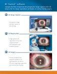Refractive Cataract Toolset - Iogen - Page 5