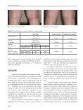 Tacrolimus como tratamiento de la dermatitis atópica - Alergología e ... - Page 4