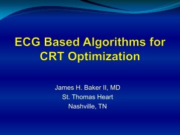 ECG Based Algorithms for CRT Optimization