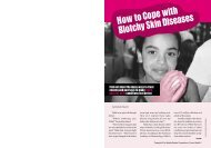 How to Cope with Blotchy Skin Diseases