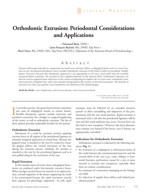 Orthodontic Extrusion: Periodontal Considerations and