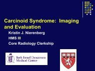 Carcinoid Syndrome - Lieberman's eRadiology Learning Sites