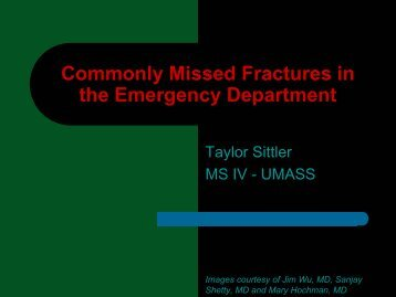 Commonly Missed Fractures in the ED