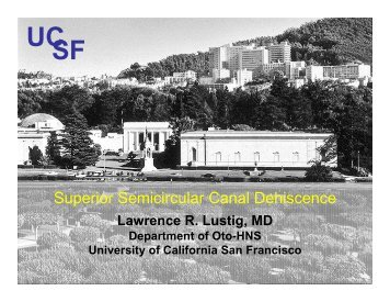 Superior Semicircular Canal Dehiscence - Stanford Hospital & Clinics