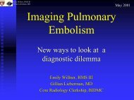 Imaging Pulmonary Embolism