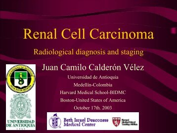 Renal cell carcinoma - Lieberman's eRadiology Learning Sites