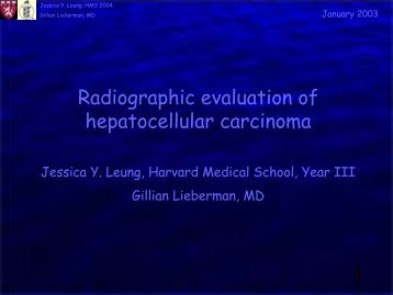Radiographic evaluation of hepatocellular carcinoma