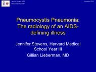 Pneumocystis Pneumonia: The radiology of an AIDS- defining illness