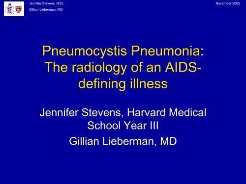 Pneumocystis Pneumonia: The radiology of an AIDS- defining illness