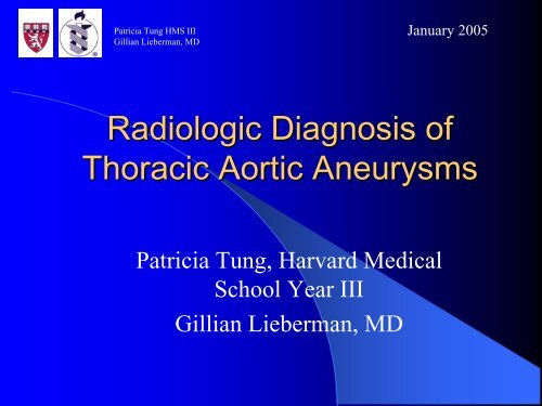Radiologic Diagnosis of Thoracic Aortic Aneurysms