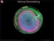 Retinal Remodeling