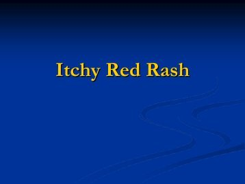 Itchy Red Rash - Dermatology