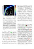 Zipping and Unzipping of Adenylate Kinase - Structural ... - Page 4