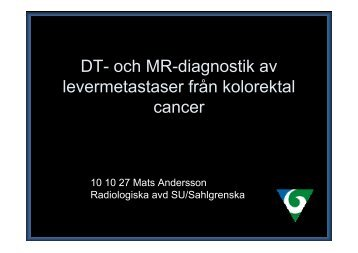 DT- och MR-diagnostik av levermetastaser från kolorektal cancer