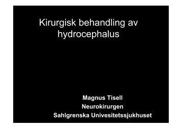 Kirurgisk behandling av hydrocephalus