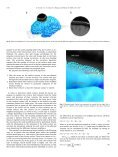 Interactive surface-guided segmentation of brain MRI data - Page 4