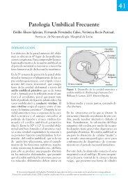 Patología Umbilical Frecuente - Asociación Española de Pediatría