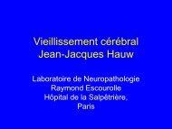 Vieillissement cérébral et Maladie d'Alzheimer Jean-Jacques Hauw