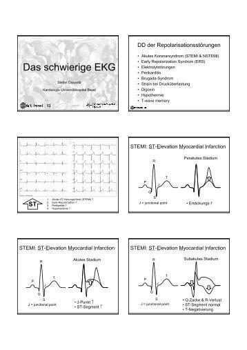 Das schwierige EKG