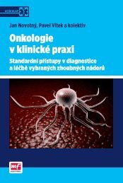 Onkologie v klinické praxi - Standardní přístupy - náhled - eReading