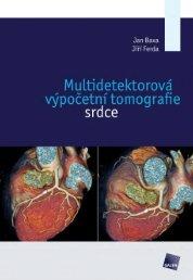 Multidetektorová výpočetní tomografie srdce - náhled - eReading