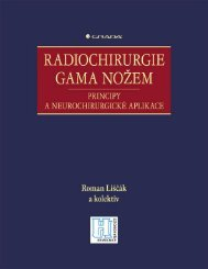 1 Historie radiochirurgie gama nožem - eReading