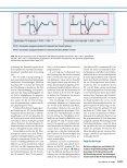 Moderne Herzschrittmachertherapie - Erkan Arslan - Page 5