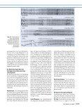 Moderne Pharmakotherapie bei supraventrikulären und - Erkan Arslan - Page 6