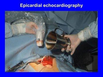 Epicardial echo
