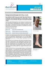 Kompressionstherapie bei Ulcus cruris - eurocom