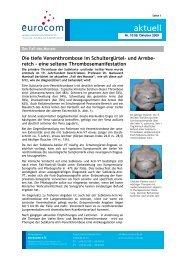 Die Tiefe Venenthrombose Im Schultergürtel- Und Armbe - eurocom