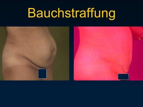 Plastisch-chirurgische Operationen bei krankhaftem Übergewicht