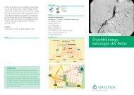 Durchblutungs - störungen der Beine - Asklepios