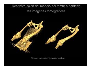 Visualización tridimensional de la deformidad femoral en un caso ...